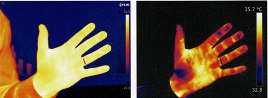 Infrared thermography of hand